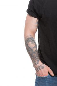 eliminación tatuajes 2