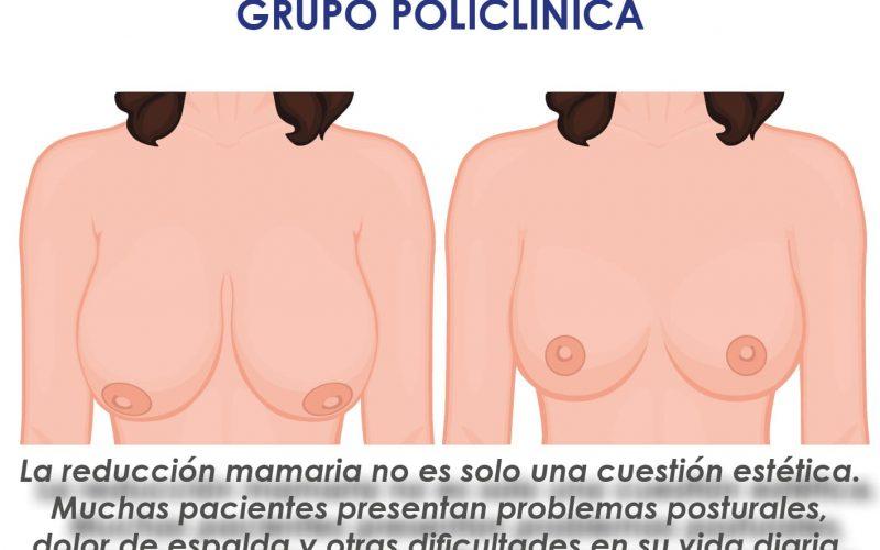 Reducción mamaria en Eiviestetic