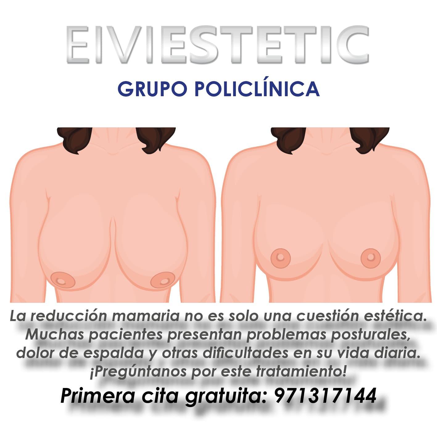 cartel reducción mama