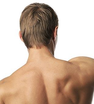 depilación laser espalda