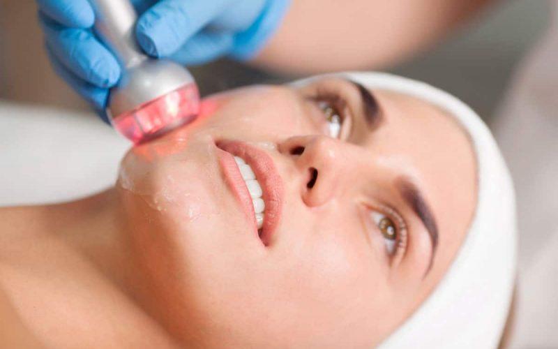Radiofrecuencia facial, efecto lifting inmediato